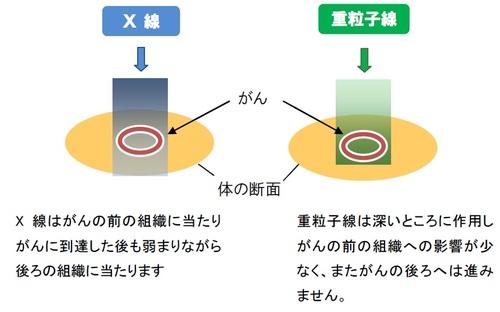 X線と重粒子線の違い
